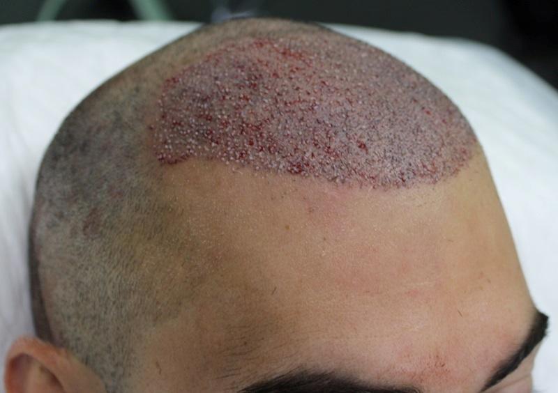 clinicas-ceta-tecnica-fue-cirugia4