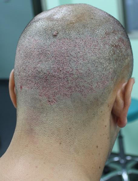 clinicas-ceta-tecnica-fue-cirugia5