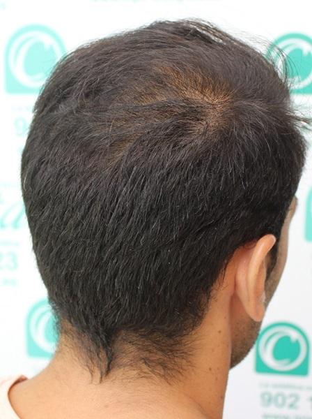clinicas-ceta-tecnica-fue-4mes5