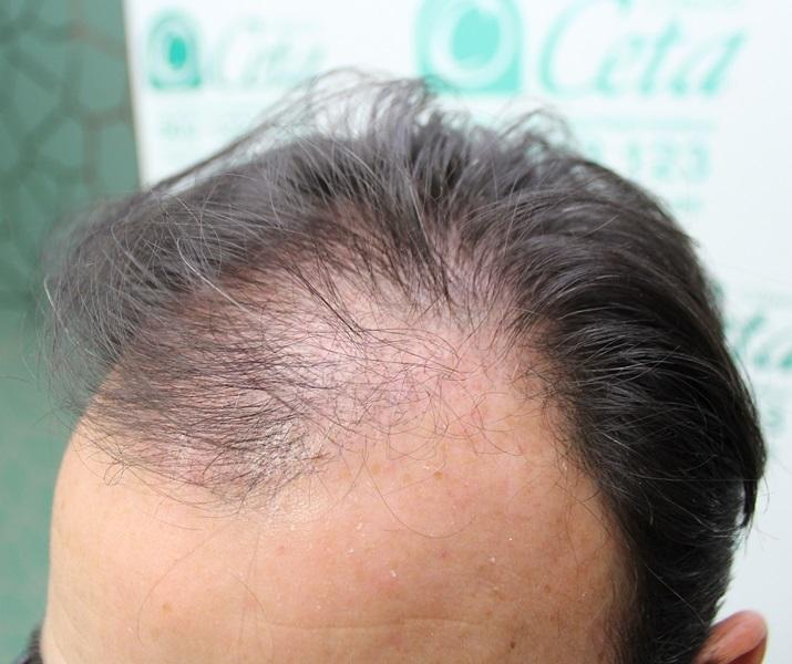 clinicas-ceta-tecnica-fue-1mes3