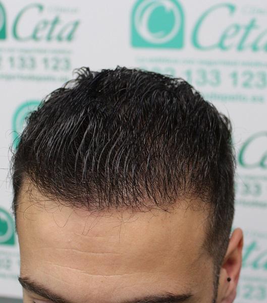 clinicas-ceta-tecnica-fue-7meses4