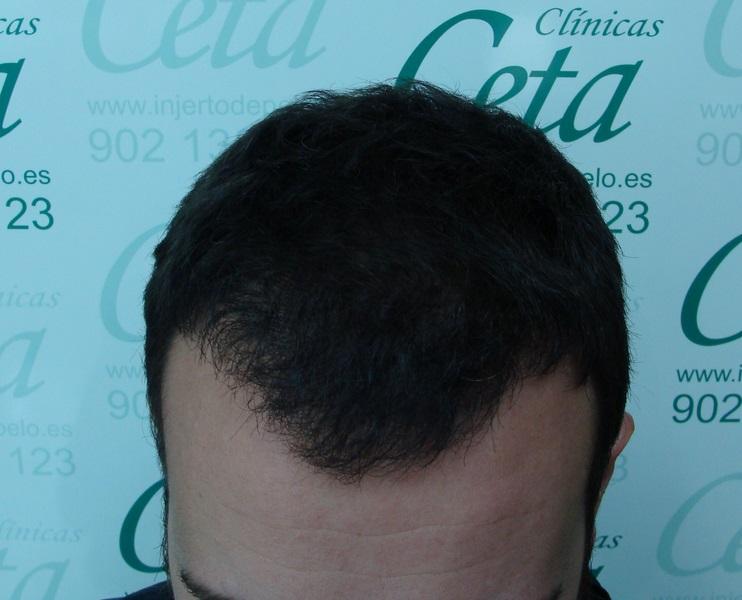 clinicas-ceta-tecnica-fue-12meses5