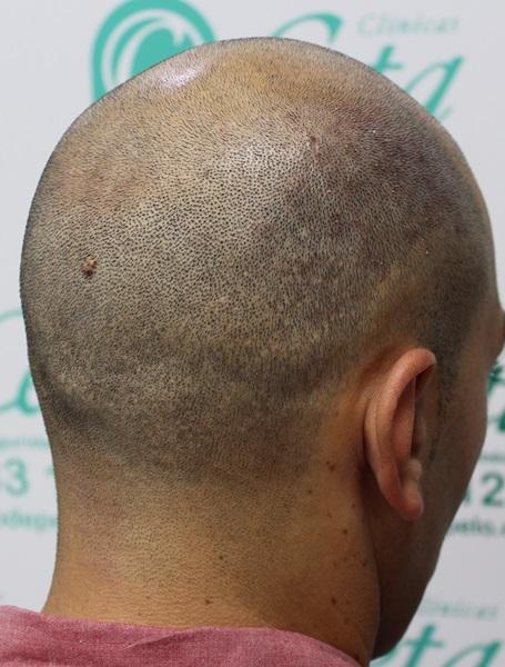 clinicas-ceta-tecnica-fue-previa6
