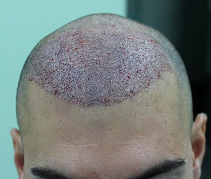 clinicas-ceta-tecnica-fue-cirugia1