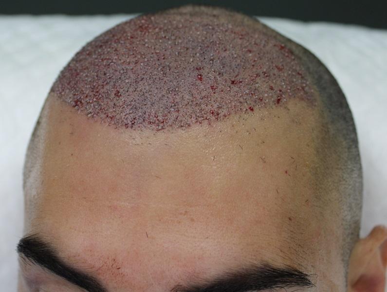 clinicas-ceta-tecnica-fue-cirugia3