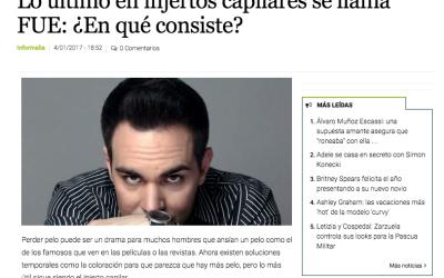 Lo último en injertos capilares se llama FUE: ¿En qué consiste?- Informalia | elEconomista.es