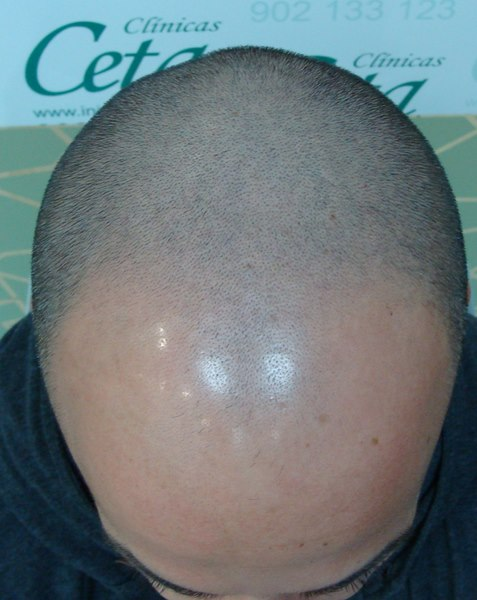 tecnica-FUE-Clinicas-Ceta-previa-1