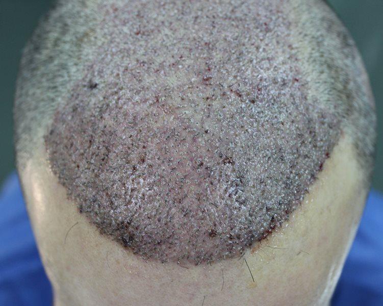 tecnica-FUE-Clinicas-Ceta-cirugia2
