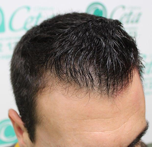 tecnica-FUE-Clinicas-Ceta-previa-3