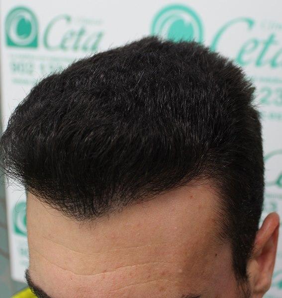 tecnica-FUE-Clinicas-Ceta-8meses-4