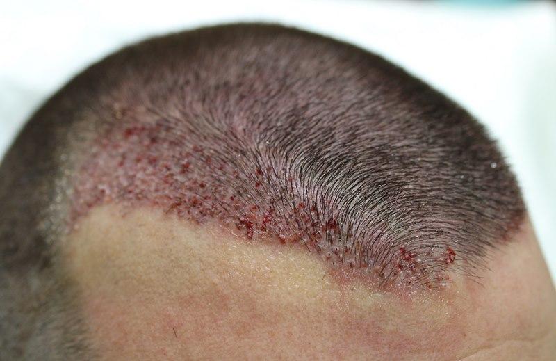 tecnica-FUE-Clinicas-Ceta-cirugia1