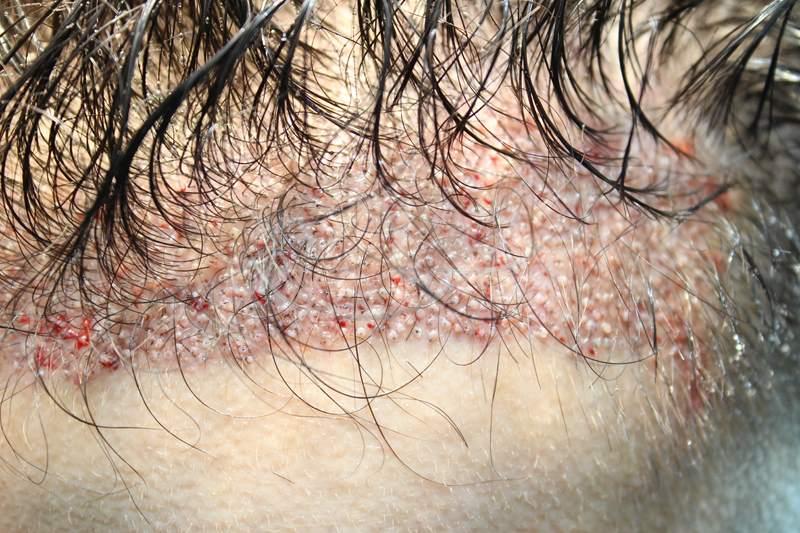 tecnica-FUE-Clinicas-Ceta-cirugia-4