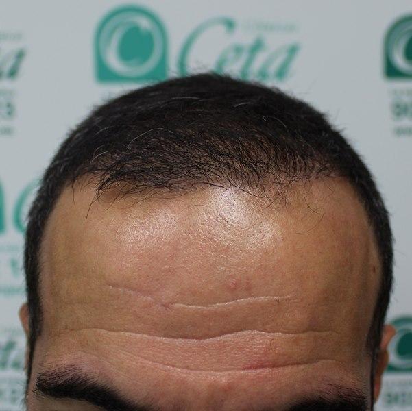 tecnica-FUE-Clinicas-Ceta-5meses.2