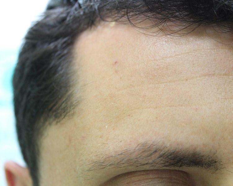 tecnica-FUE-Clinicas-Ceta-previa6