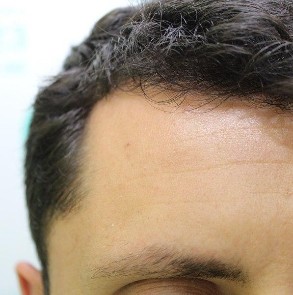 tecnica-FUE-Clinicas-Ceta-previa1